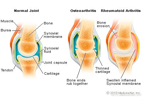 Pictures of Normal and Arthritic joints