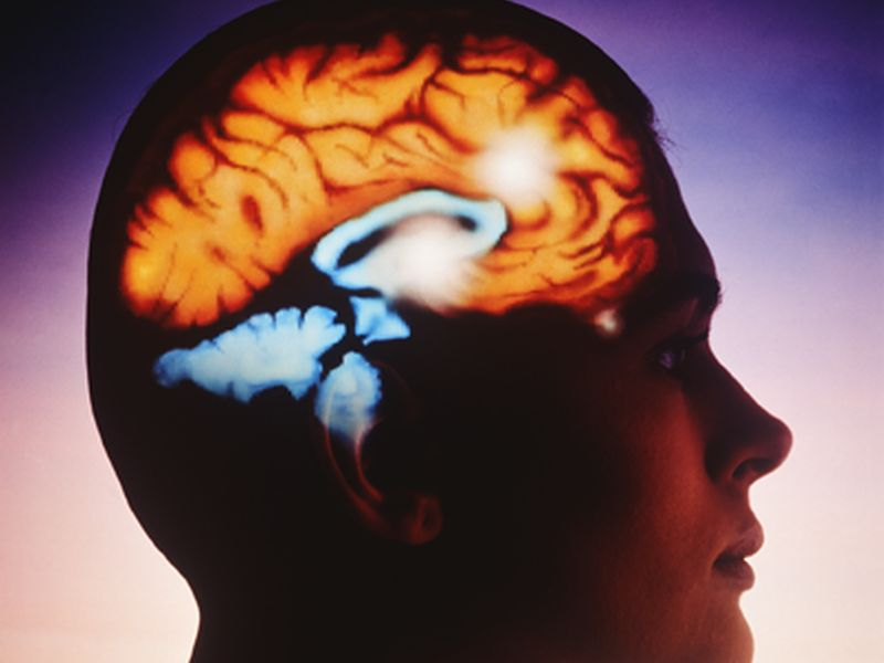 News Picture: Does Size Matter? Volume of Brain Area Not Always Tied to Memory, Thinking