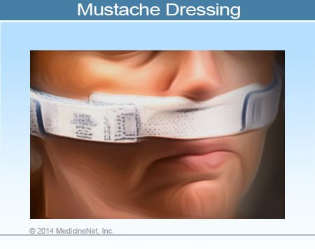 Picture of Mustache Dressing