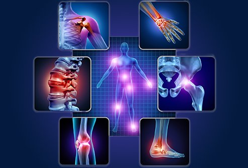 Osteoarthritis and rheumatoid arthritis are both chronic joint disorders that cause joint pain.