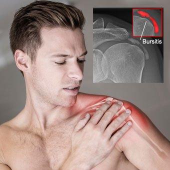 A man suffers shoulder pain due to bursitis.